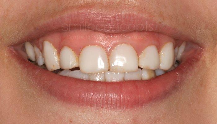 gum contouring7