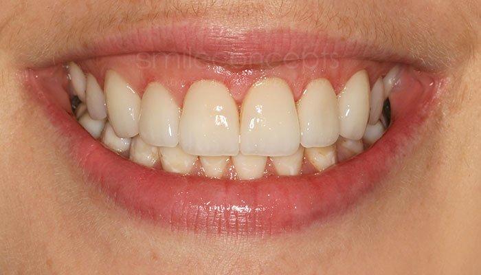 gum contouring6