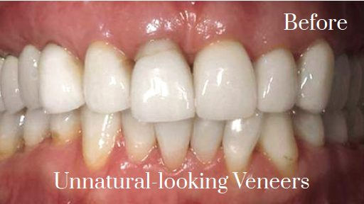 natural looking porcelain veneers