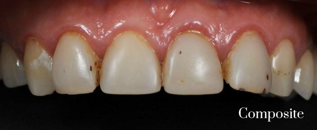 composite to porcelain veneers