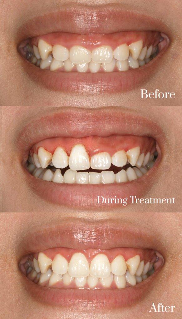 gum contouring treatment