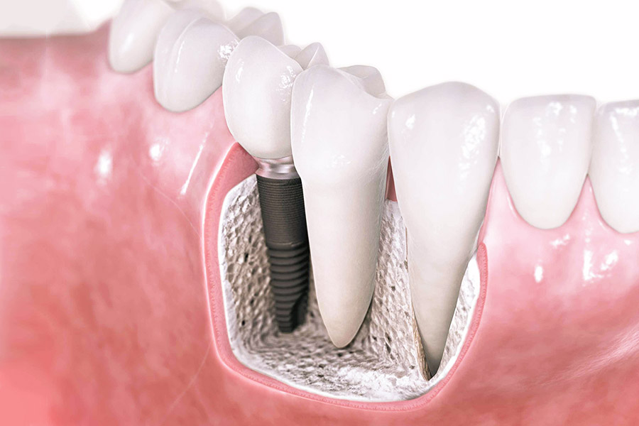 Are Dental Implants a smart choice for replacing missing teeth?