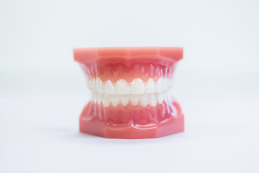 Remember Metal Braces? Straighten teeth without them