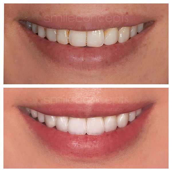 porcelain veneers 25