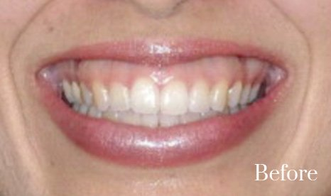 gummy smile treatment1