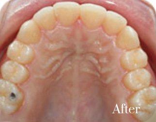 lingual braces 8