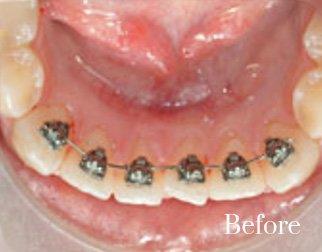 lingual braces 7