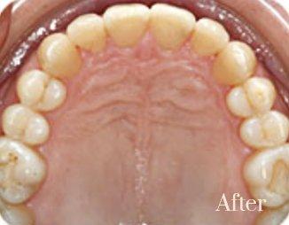 lingual braces 4