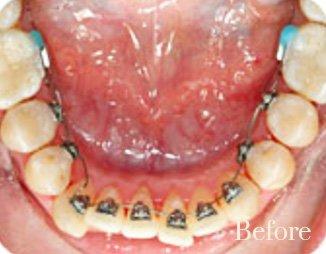 lingual braces 3