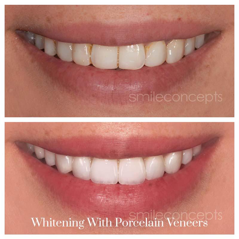porcelain veneers for whitening