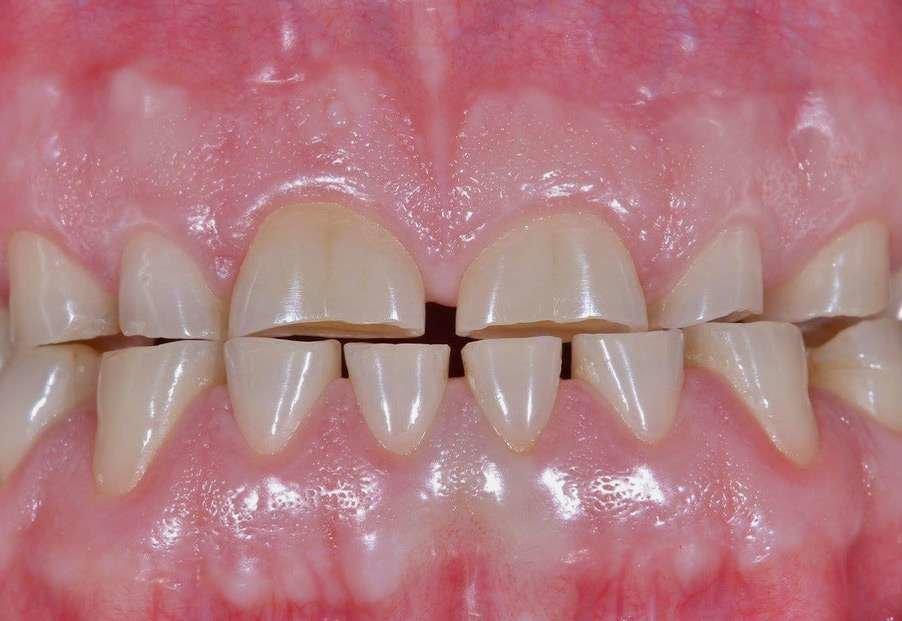 attrition causes worn teeth