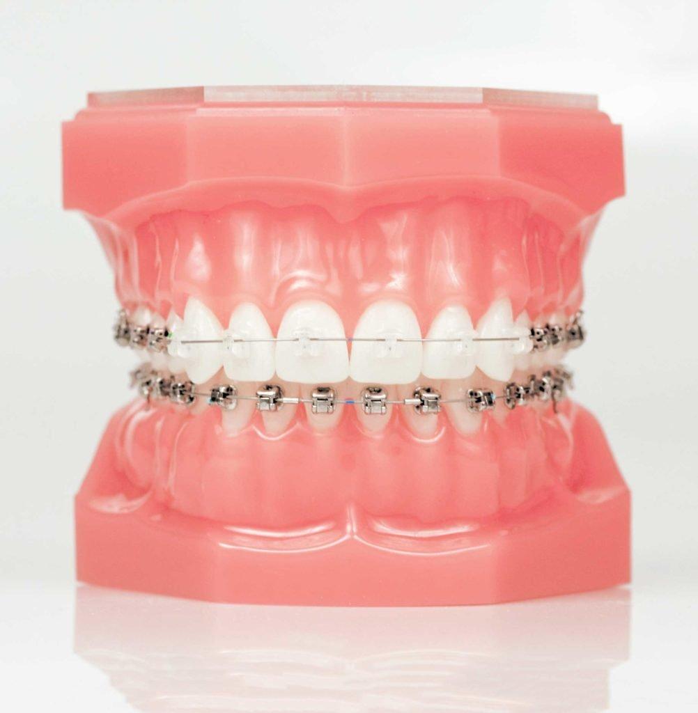 ceramic braces mold