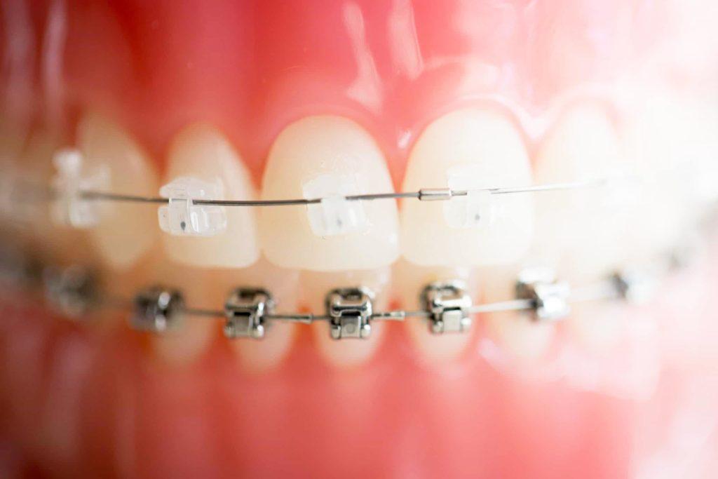 damon braces close up