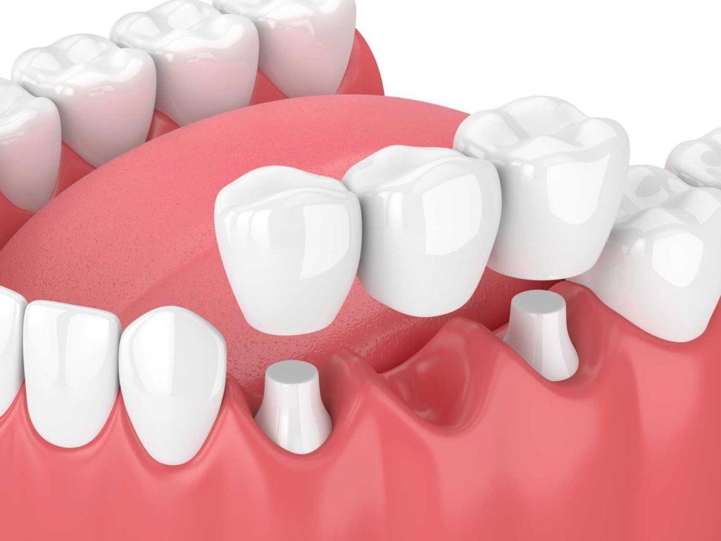 dental bridge missing teeth