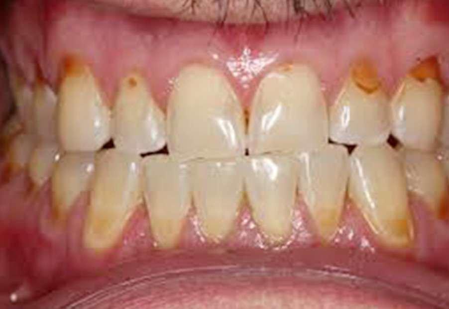 erosion causes worn teeth