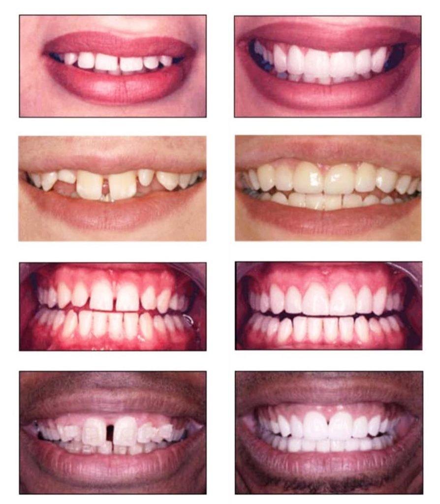 Spaces/Gaps between Teeth