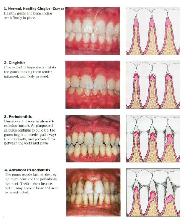 gum disease 4 stages