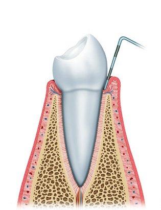 gum disease diagram4