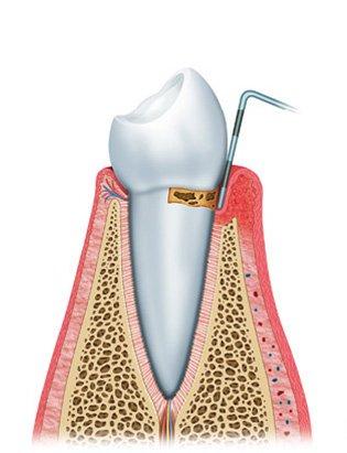 gum disease diagram3