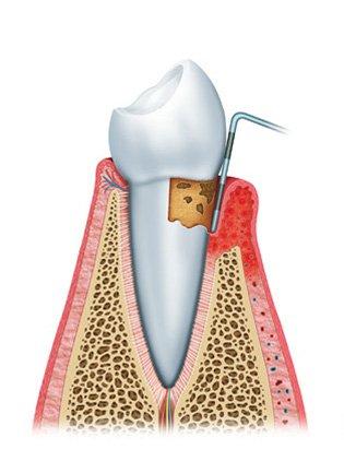 gum disease diagram2