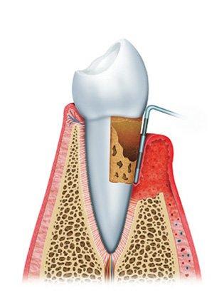 gum disease diagram