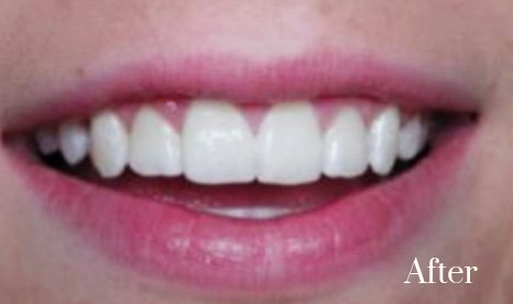 gummy smile treatment 2