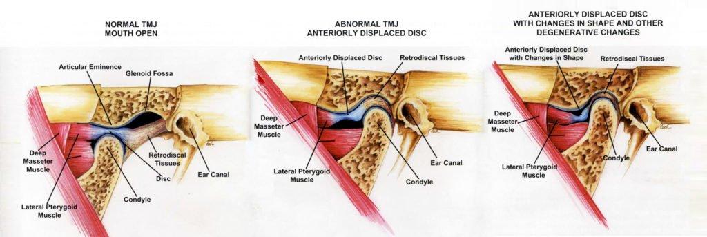 tmj pain and headaches