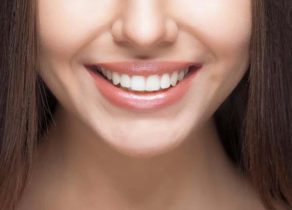 gummy-smile