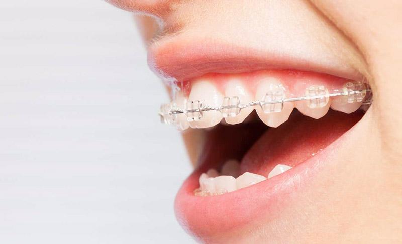 Ceramic braces Cost