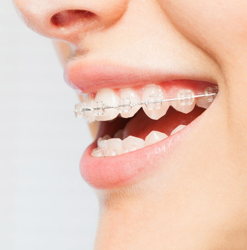 affordable clear braces cost