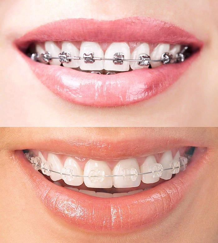 clear braces cost vs metal braces cost