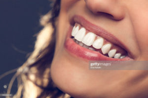 The 18 Most Important Things to Know About Getting Dental Porcelain Veneers
