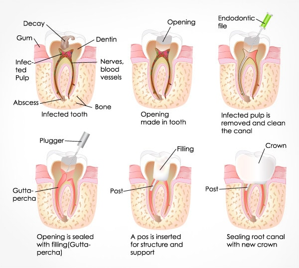 Root Canal Treatment Sydney