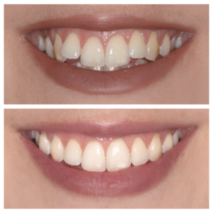 VIP Invisalign Package