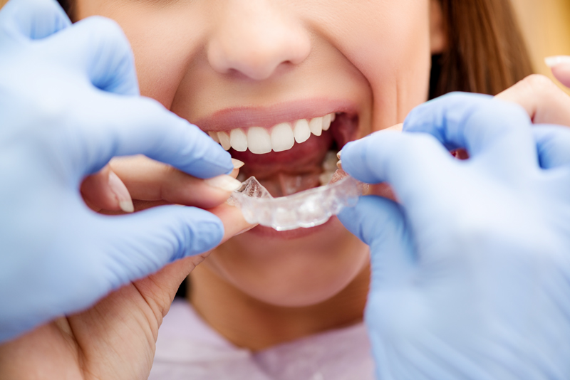 Pro Tip:21 Tips for Braces Success in 2021