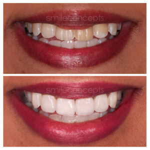 (Updated) Composite Veneers Guide for 2021: Cost, Risks and all you need to know
