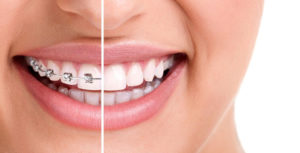 Truth Revealed: Braces vs. Invisalign - We'll Find Your Match