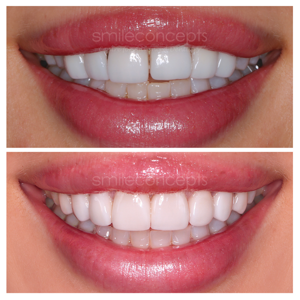 porcelain veneers makeover before and after