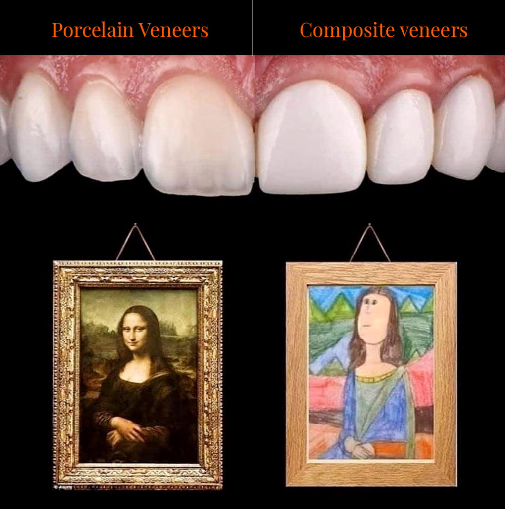 compare and contract of composite veneers and porcelain veneers