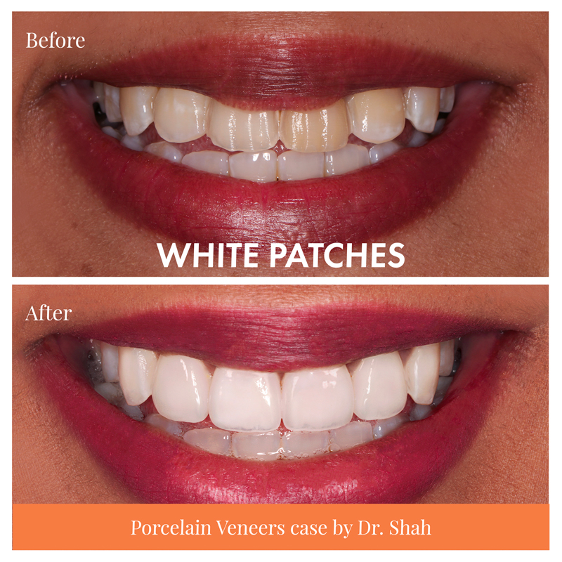 real case of composite veneers vs porcelain