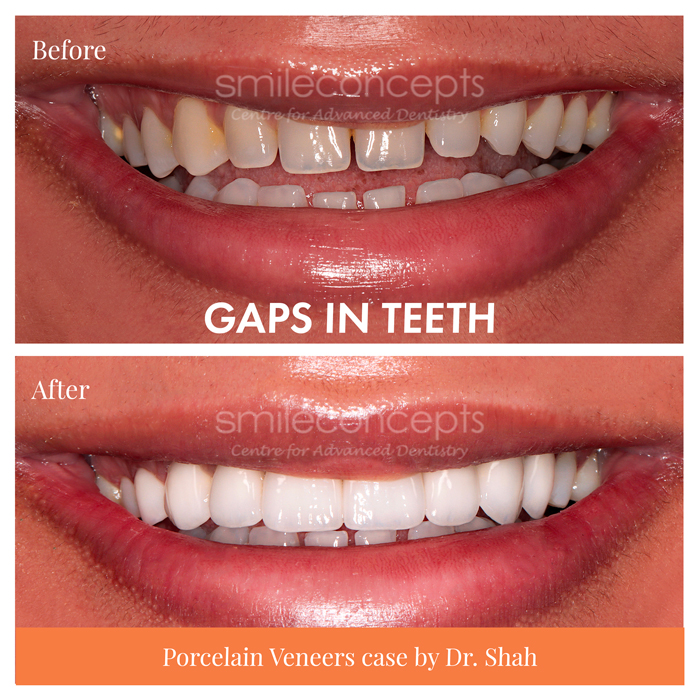 real case of composite veneers vs porcelain by dr shah