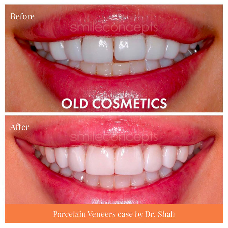 composite veneers compare to porcelain veneers