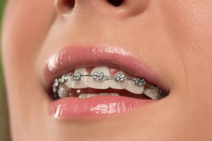 How Much Do Braces Cost In Australia? Dental Braces: Options, Procedures, and Costs
