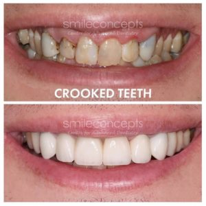 Can I Get Porcelain Veneers If I Have Crooked Teeth? A Case Study