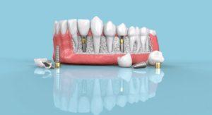 Are dental implants worth it? 15-minute Digital Implant Surgery 101