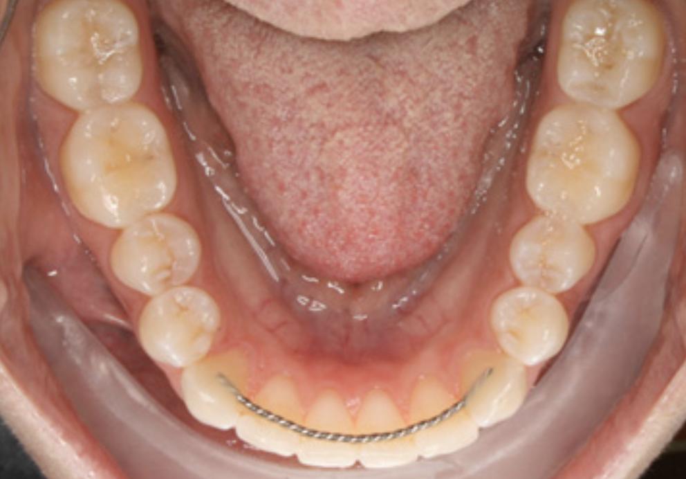 Orthodontic Retainers