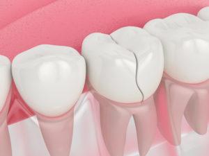 severe tooth crack emergency